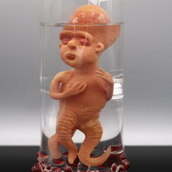 Jonny Carrcass Thalidomide Fetus in a Bottle